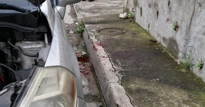 Agente de la PNC lesionado tras sufrir ataque armado en Cojutepeque
