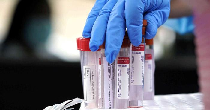 Unión Europea autoriza usar Remdesivir para pacientes con COVID-19