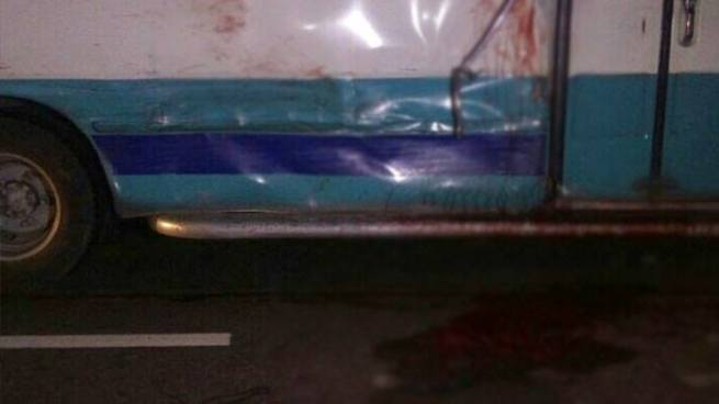 Persona pierde sus pies tras ser atropellada por un autobús en San Miguel