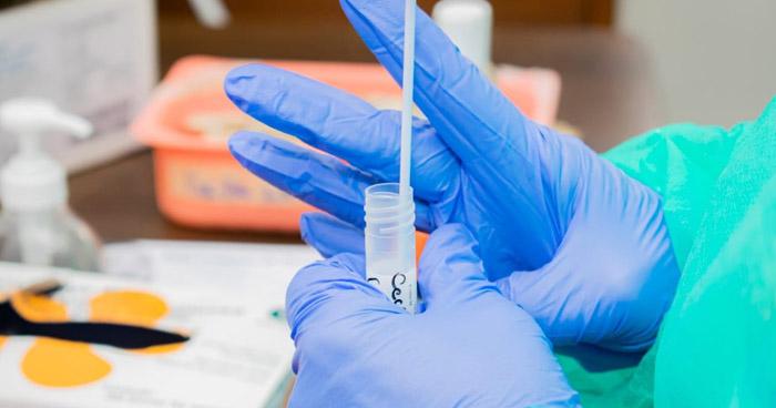 402 nuevos casos de COVID-19 en El Salvador, ya son 13.377 en total