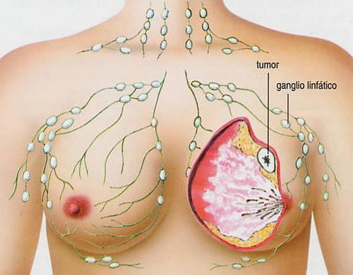cáncer de mama-Salud