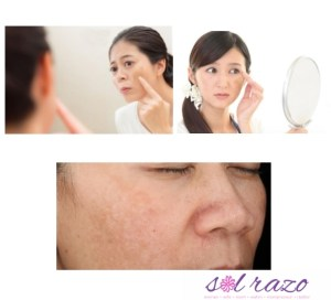 Get rid of melasma, have a brighter skin with Pynocare