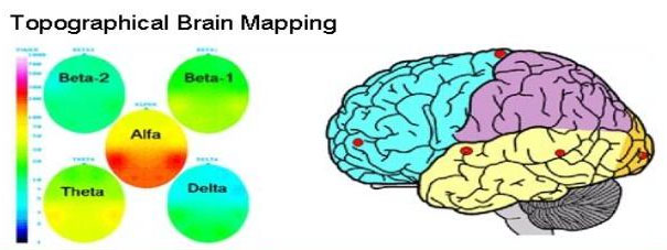 Topographical-brain-mapping