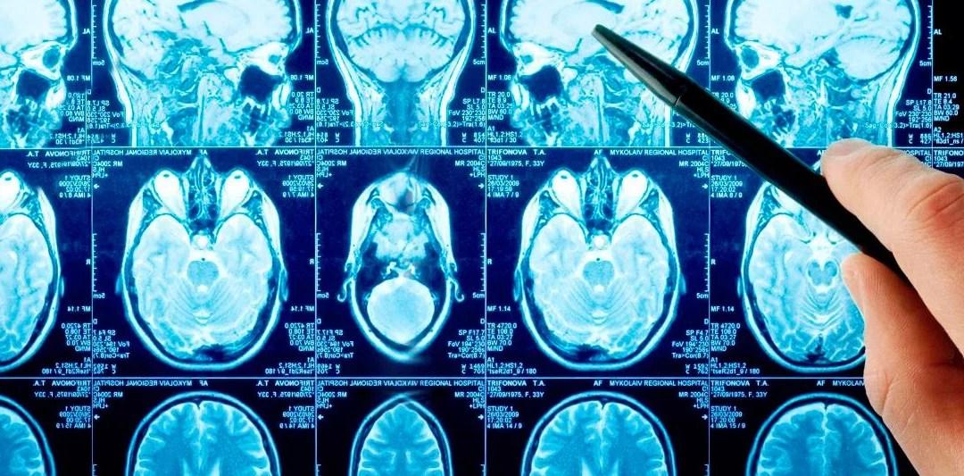 ¿Qué es la Neurociencia Cognitiva?