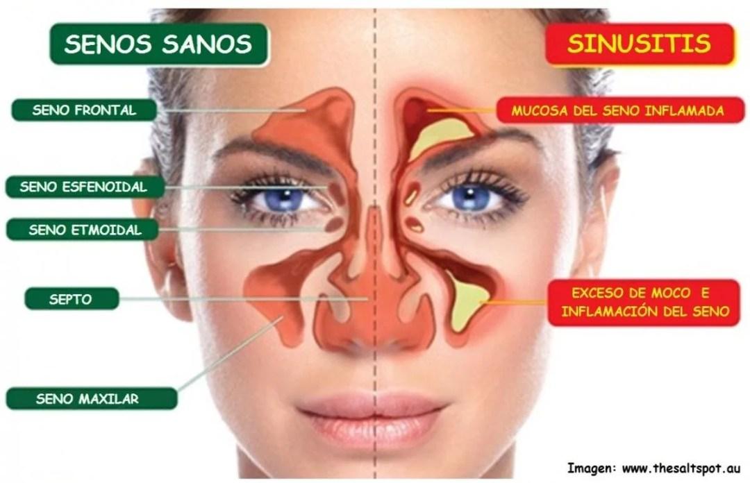 sinusitis_1