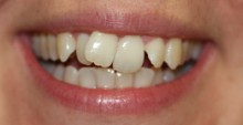 Cosmetic Dentistry Before 1