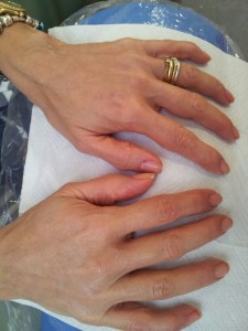 Cosmetic Dentistry Hand Rejuvenation After 2