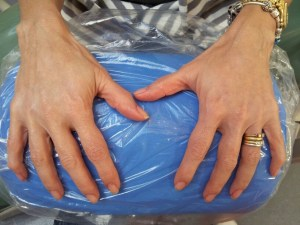 Cosmetic Dentistry Hand Rejuvenation After 1