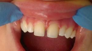 Cosmetic Dentistry Veneers Before