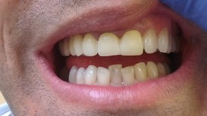 Cosmetic Dentistry Crowns Before