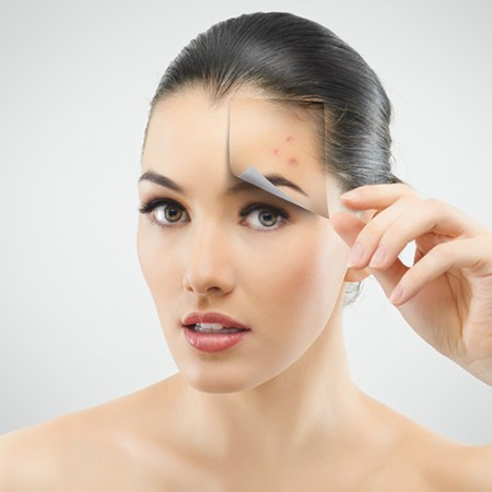 Mesotherapy - Acne