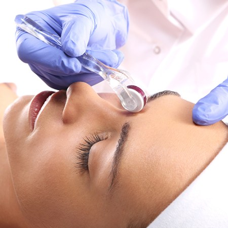 Microneedling - Facial Acne Scarring