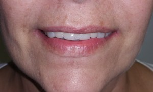 after dental implant treatment in Sonria Dental Clinic