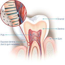 Professional Teeth whitening diagram