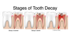 Types of Dental Decay
