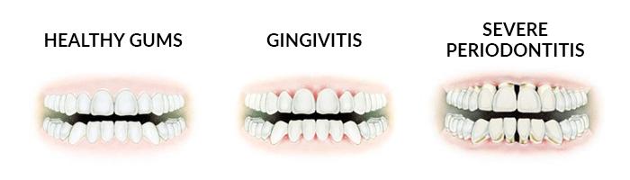 gum disease specialist Central London