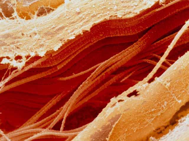 microscopio_carne_cruda_