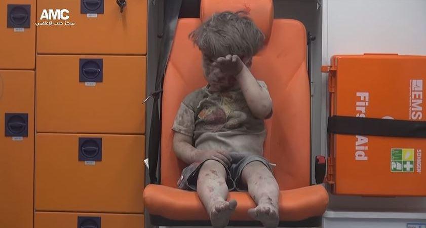 Omran, niño lesionado en ataque en Aleppo