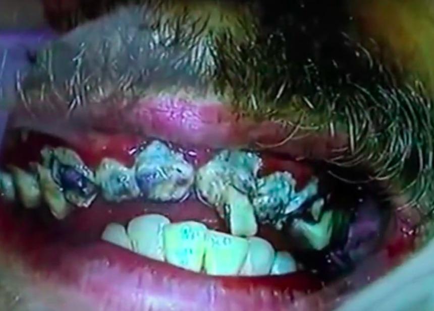 Dentadura podrida de Jay