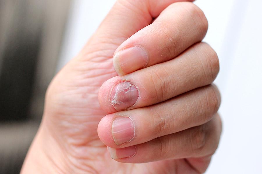 Un hombre casi muere por una infección que le provocó el morderse las uñas ????