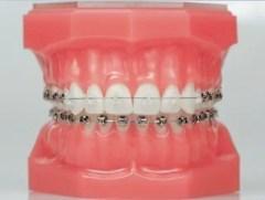 aparelho dentário porto alegre