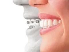 aparelho ortodontico