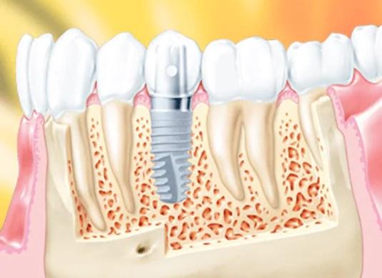cirurgia guiada implante