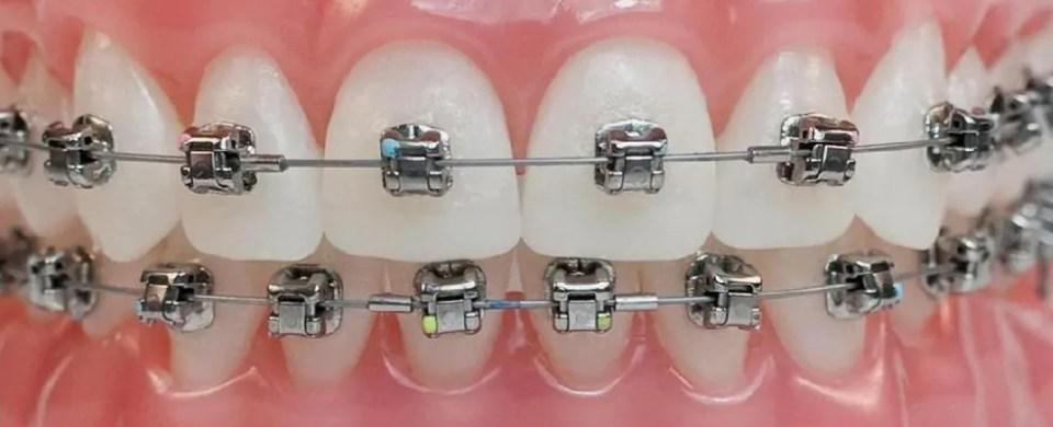 ortodontia extracao