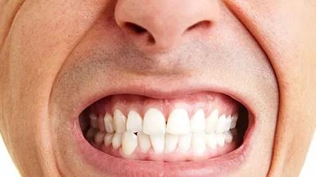 Aparelho Ortodontico Vs Bruxismo Dentista Sorridere Poa