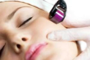 tratamento facial anti sinais microagulhamento
