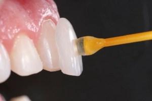 utilidade da lentes de contato dentais