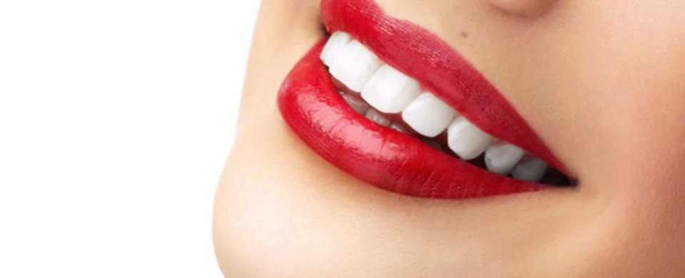 lente de contato no dentes