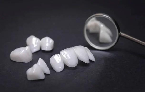 lentes de contato dentais porto alegre