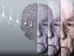 Kognitif Bir Bozukluk Olan Demans
