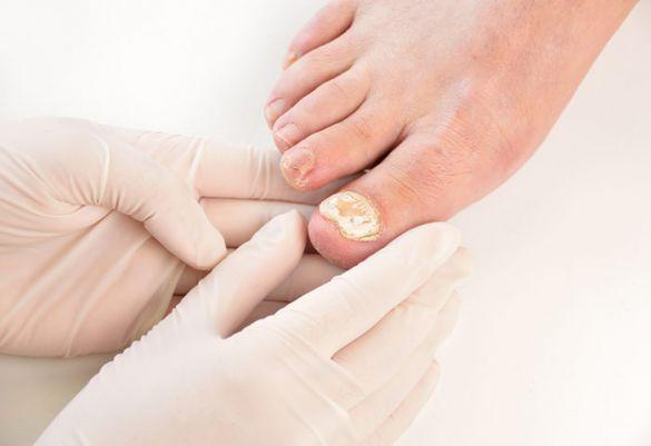Typischer Krankheitsverlauf Von Nagelpilz