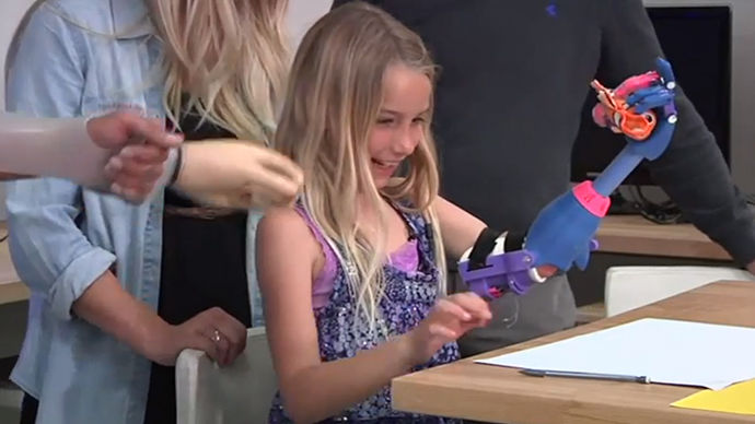 7 Year Old California Girl Gets 3D Printed Prosthesis For