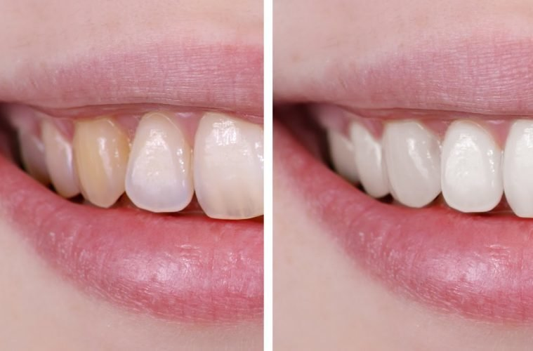 Whiten Your Teeth Safely And Naturally Health