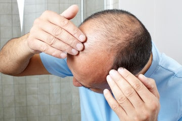 Impact of Enzymes and Treatment on hair loss
