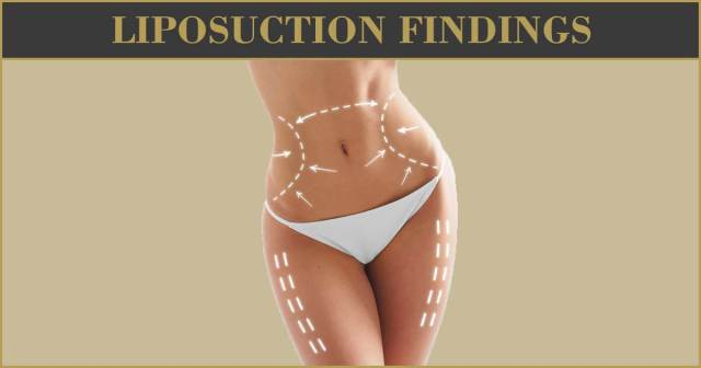 Liposuction Findings