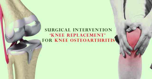 Surgical Intervention 'Knee Replacement' For Knee Osteoarthritis