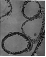 Microscopic images of melanized fungal cells:. From Dadachova et al. 2007