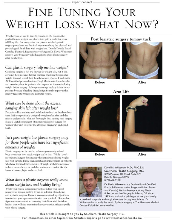 Your l-carnitine liquid for weight loss