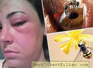 Un caso bizzarro per gli scienziati: api vivono negli occhi e bevono lacrime
