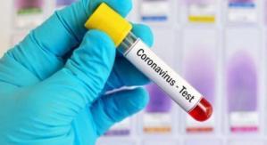 Coronavirus, nessun caso positivo accertato in Calabria nelle ultime 24 ore