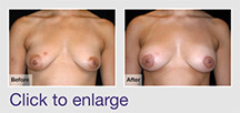 Treatment of Tubular Breasts