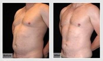 Trunk Liposuction