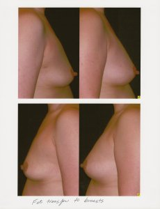 Before and after fat transfer from the abdomen and hips to the breasts.  Note the increased fullness of the upper pole of the breast and the uplifting effect.