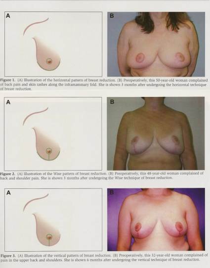 Illustrations and photos showing three breast reduction techniques.
