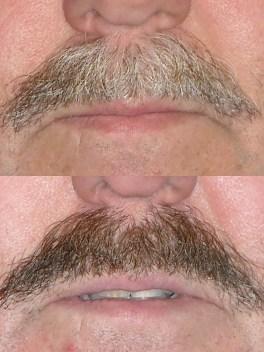 Mustache dye job seen by Seattle Plastic Surgeon
