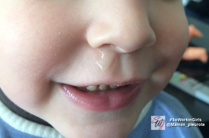 comportement d'enfant : le nez qui coule